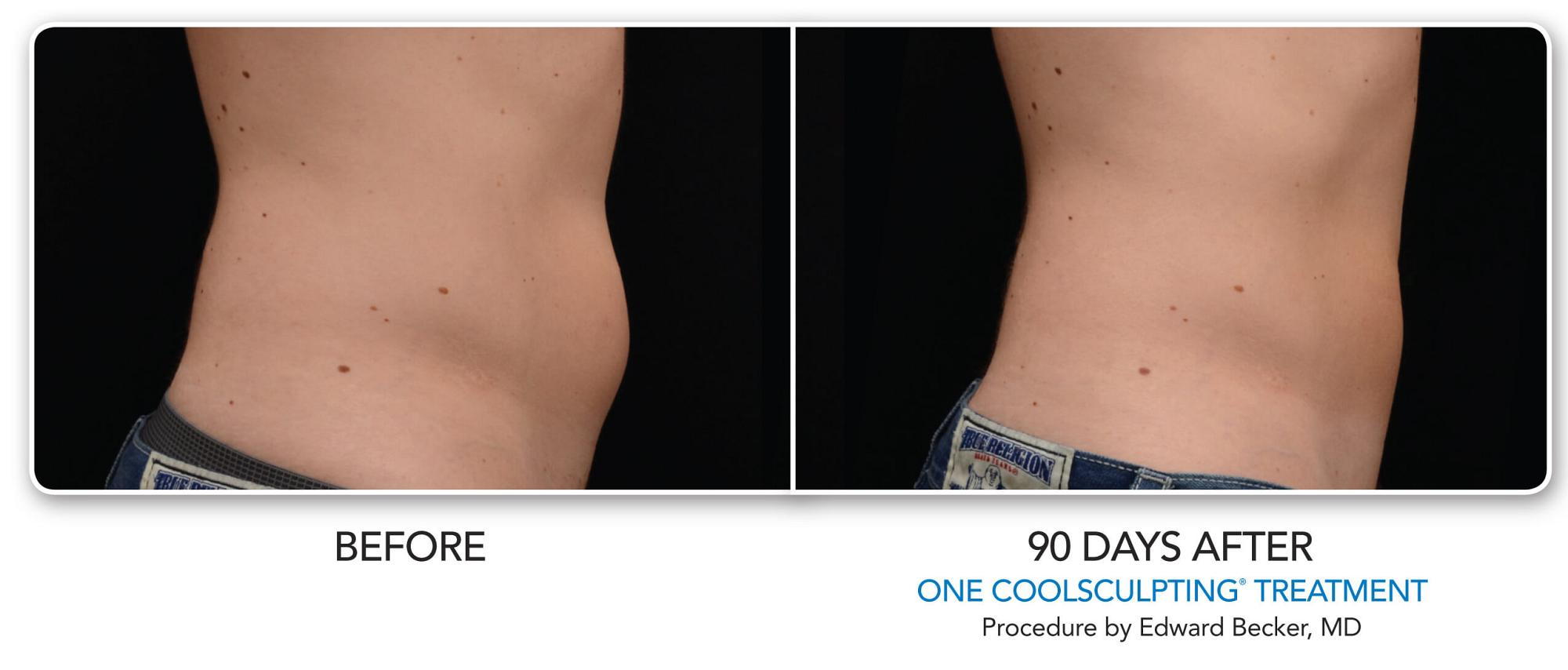 CoolSculpting Before & After Photo