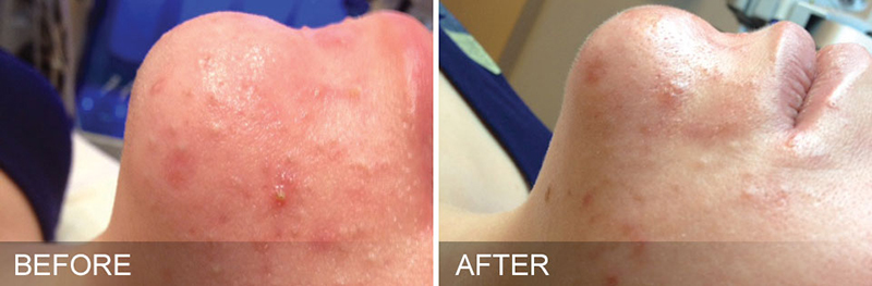 Hydrafacial Before & After Photo
