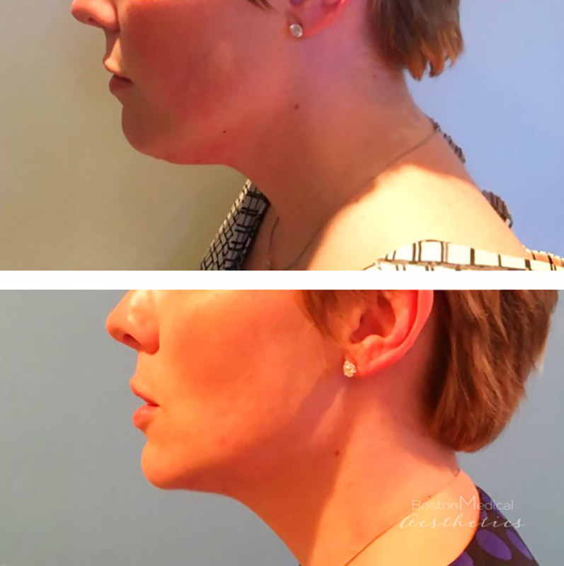 Kybella Before & After Photo
