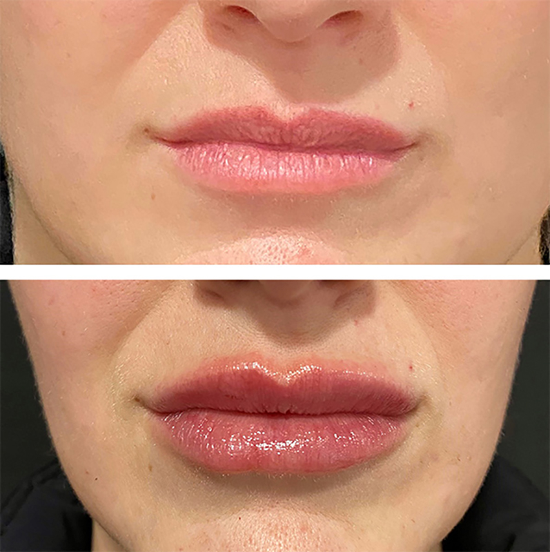 Lip Fillers Before & After Photo